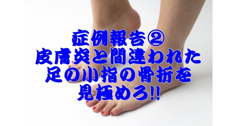 小指 ぶつけ た 痛い